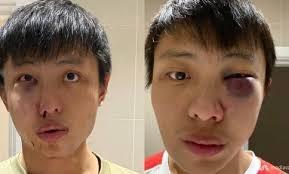 """Al grito de """"¡coronavirus!"""", tunden a golpes a joven asiático en Londres"""