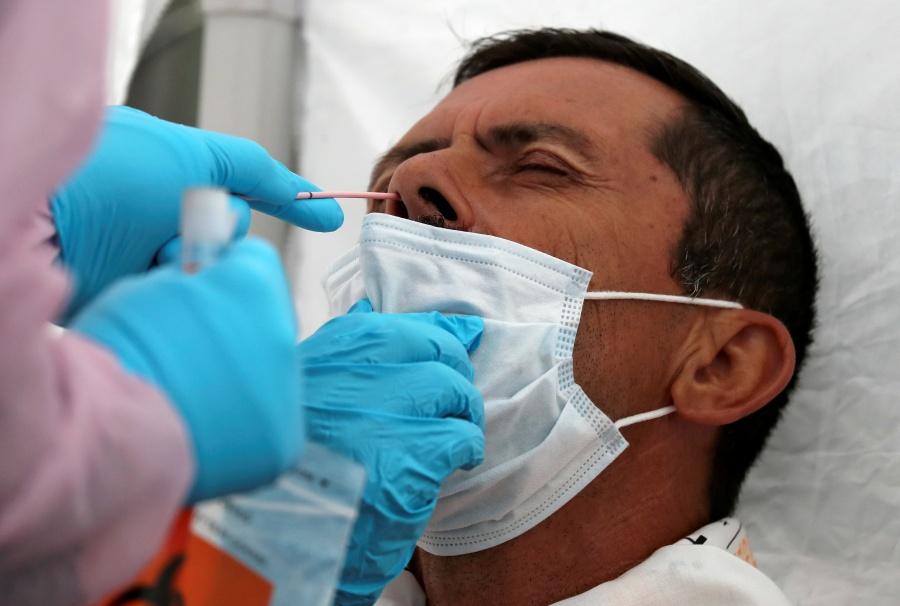 Enfermos graves de Covid-19, pueden sufrir daño cerebral, según estudio