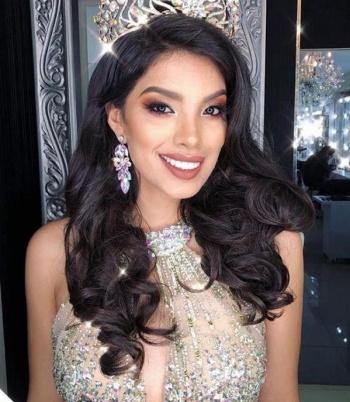 Miss Perú podría perder La Corona por aparecer en estado de ebriedad