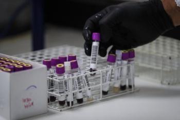 Prototipo de vacuna contra VIH llega a fase 3 de ensayos clínicos