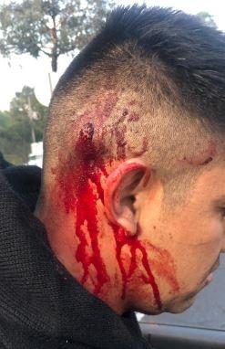Auxilia SSC a lesionado de bala en Periférico