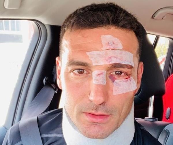Lionel Scaloni recibe alta tras ser atropellado en Mallorca