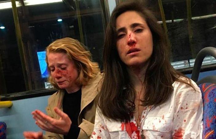 Pareja de lesbianas sufre agresión homófoba en autobús de Londres
