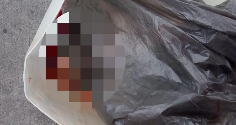 Hallan a recién nacido muerto en un bote de basura de hospital en CDMX