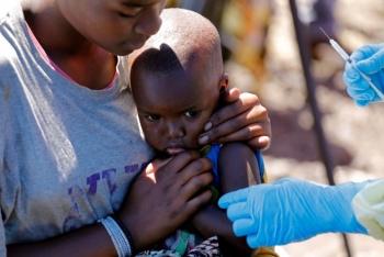 Brote de sarampión causa más muertes que el ébola en el Congo