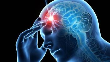 Migraña, una enfermedad discapacitante infradiagnosticada