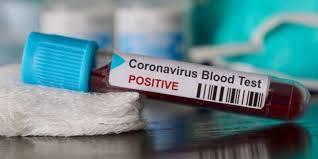 Confirman primer caso de coronavirus en Irlanda del Norte