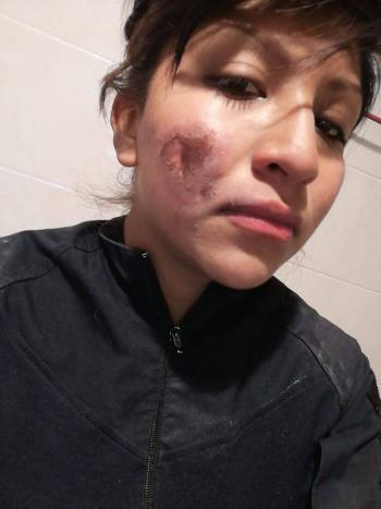 """Policía quemada por feministas: """"Yo no he matado, ni violado a nadie"""""""