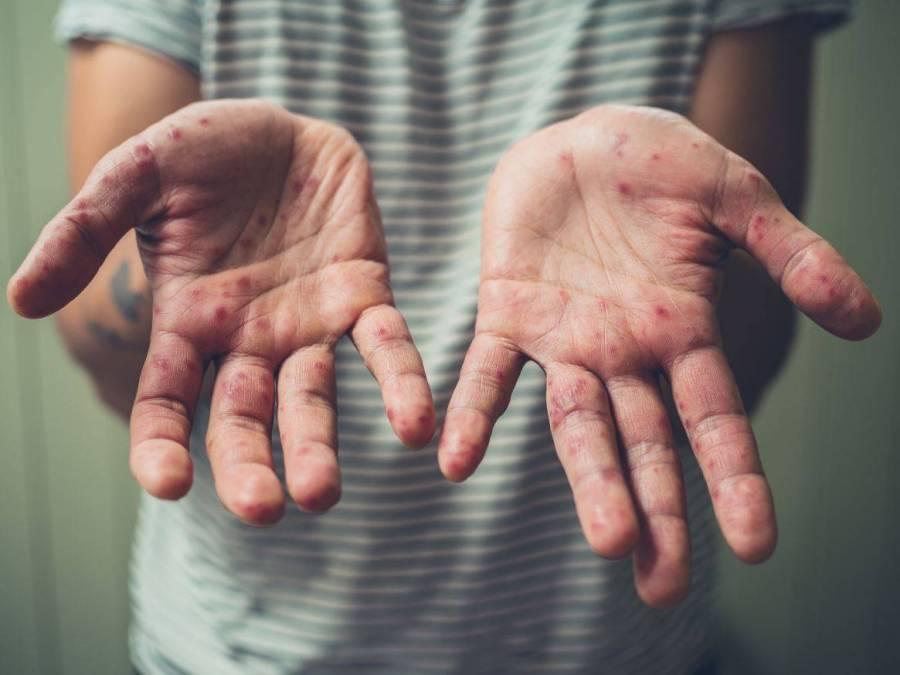 62, los casos de sarampión en la CDMX; 58 de ellos asintomáticos