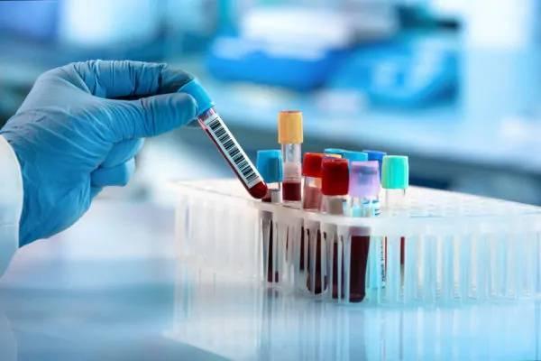 Suman 103 casos positivos por Covid-19 en Nuevo León
