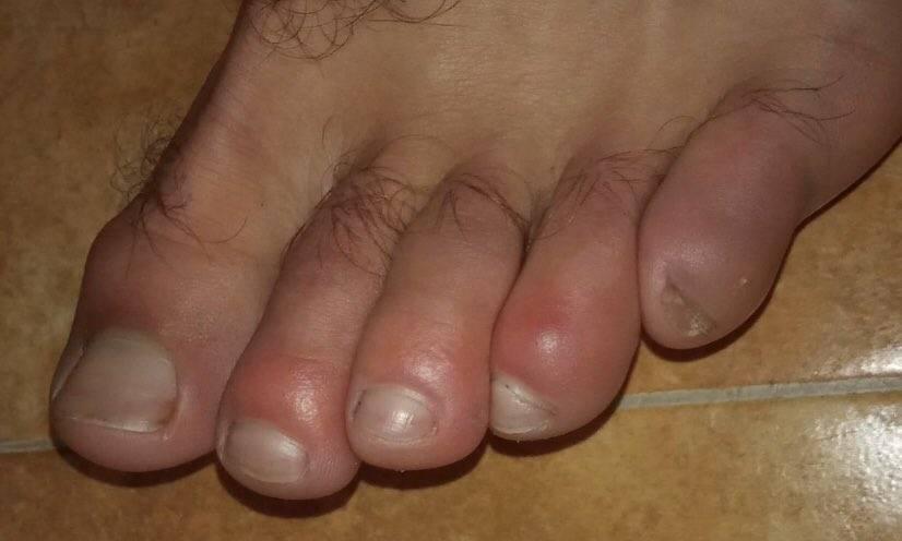 Inflamación de extremidades y ronchas; presuntos síntomas de Covid-19 en niños