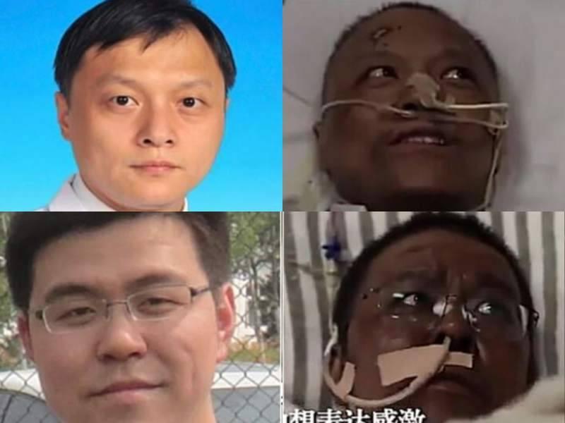 Un fuerte oscurecimiento de piel ocurre en dos médicos chinos de Wuhan
