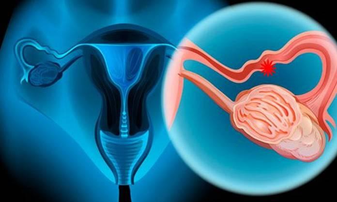 Cáncer de ovario ocupa el tercer lugar de mortalidad