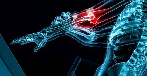 IPN crea prueba rápida de cáncer de huesos