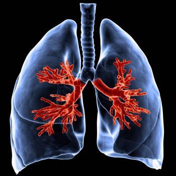 Italiano recibe trasplante de ambos pulmones tras enfermar de COVID-19