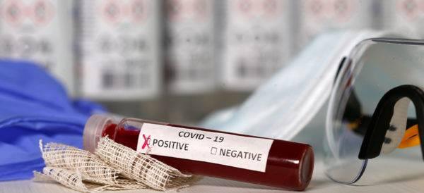Hay cuatro pruebas serológicas aprobadas por la Cofepris
