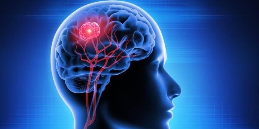 Al año, diagnostican 300 mil nuevos casos de tumores cerebrales en el mundo