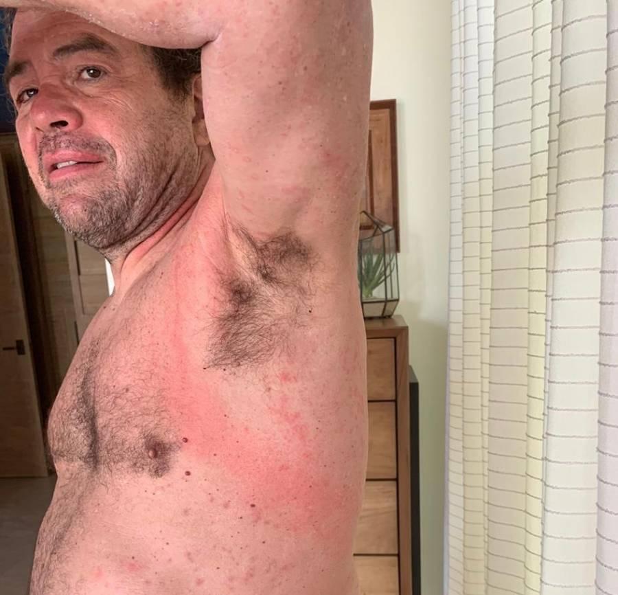 Antonio Arguelles es picado por medusas durante entrenamiento en Mar de Cortés