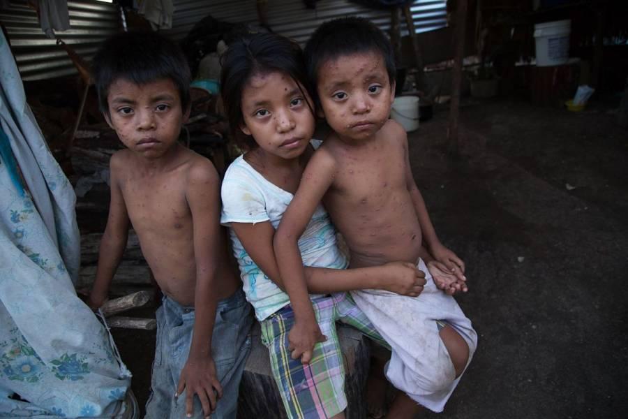 Pandemia aumenta la desnutrición en América Latina y el Caribe