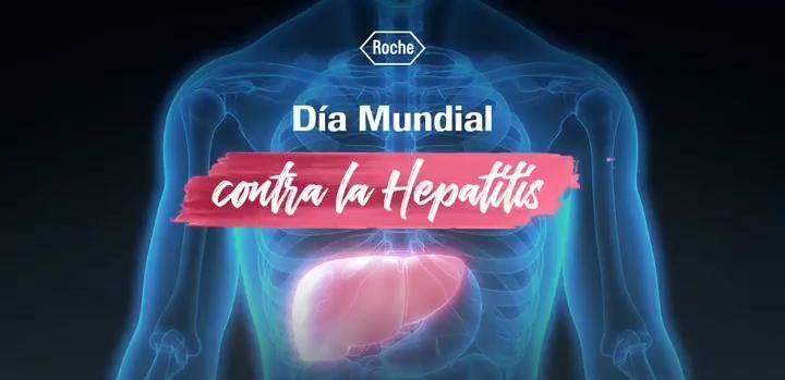 Hepatocarcinoma Hepatitis B y C, causantes del 65% de los casos de cáncer de hígado.