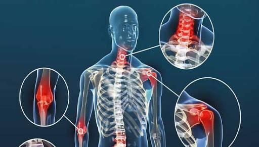 Pacientes con enfermedades reumáticas deben hacer ejercicio para mejorar su calidad de vida.