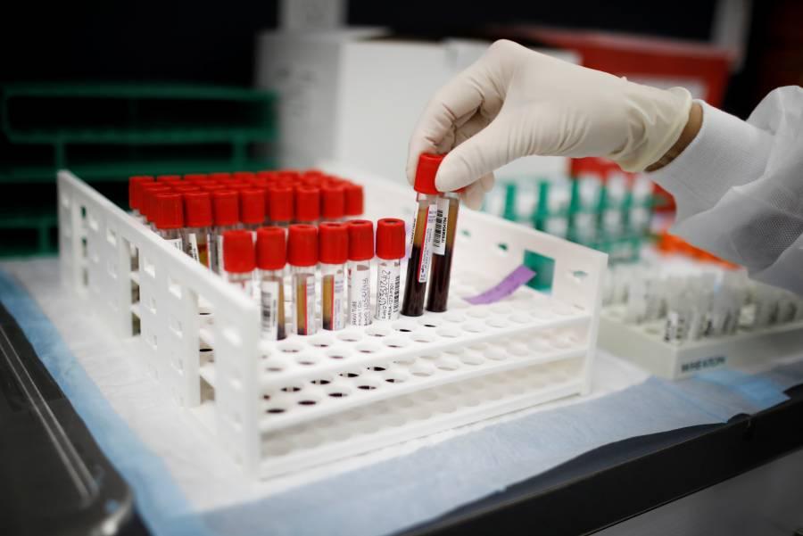 Venezuela recibe lote de vacuna rusa contra el Covid-19