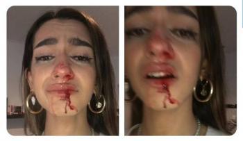 Denuncia joven agresión tránsfoba en Barcelona, España