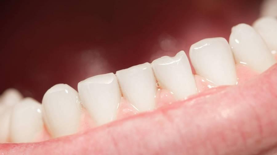 COVID-19 podría provocar la caída de dientes, reporta NYT