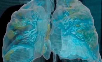Revelan estudios daño hasta luego de tres meses en pulmones de quienes tuvieron Covid