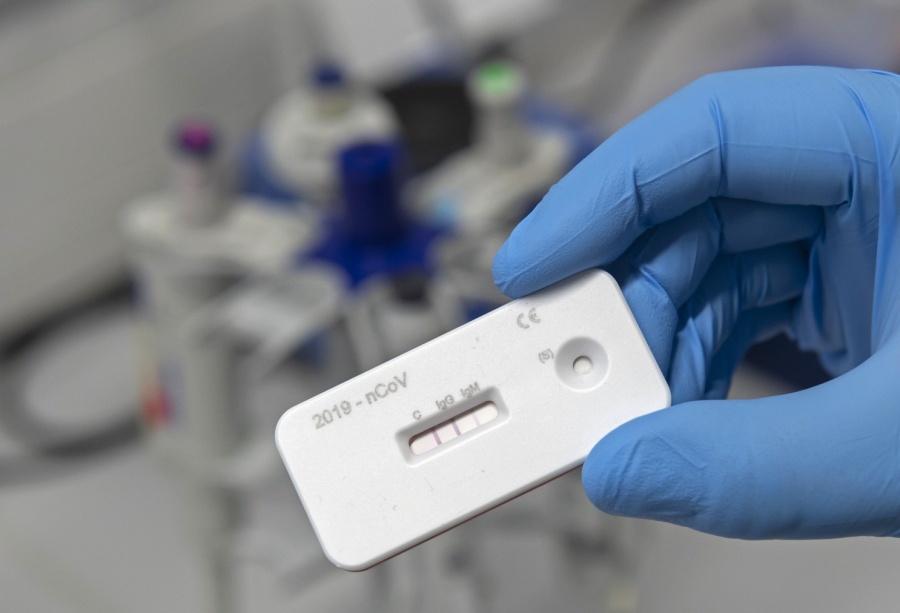 Alemania aprueba test caseros para COVID con el fin de ayudar a poner fin a la cuarentena