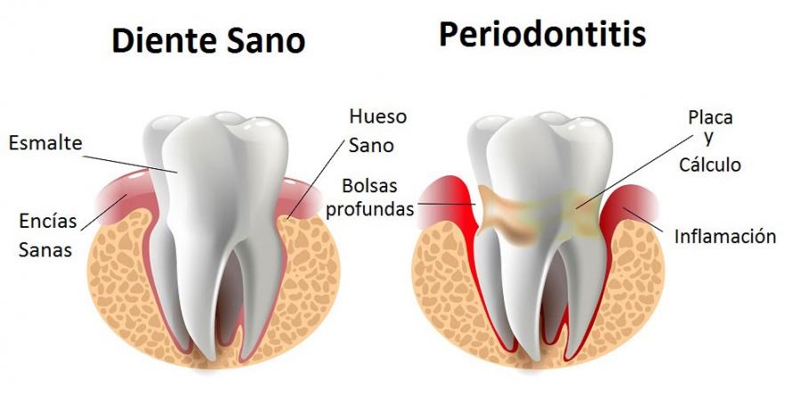 Caries y enfermedad periodontal, principales padecimientos por falta de higiene bucal