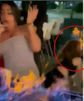 Meseros queman el rostro de una turista en Cancún