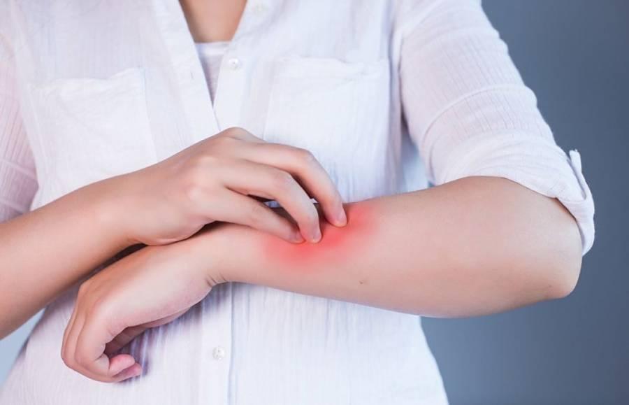 Científicos estudian relación de manifestaciones dermatológicas con el COVID-19