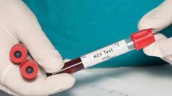 Rebajan precio de pruebas de VIH a la mitad para 135 países