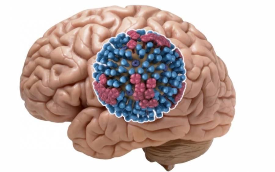 Daños neurológicos, posible grave secuela de Covid-19