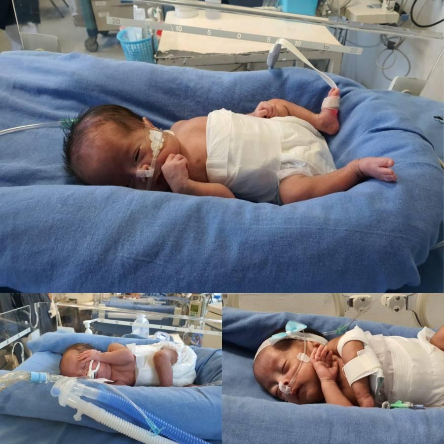 Nacen trillizas en el Hospital Juárez De México