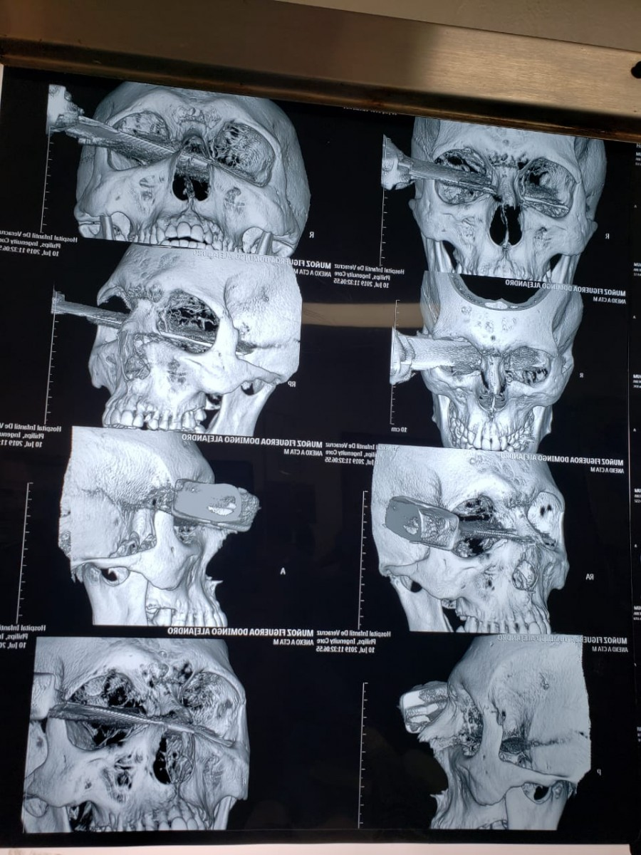 Hombre pierde el ojo tras una riña por un lugar de estacionamiento