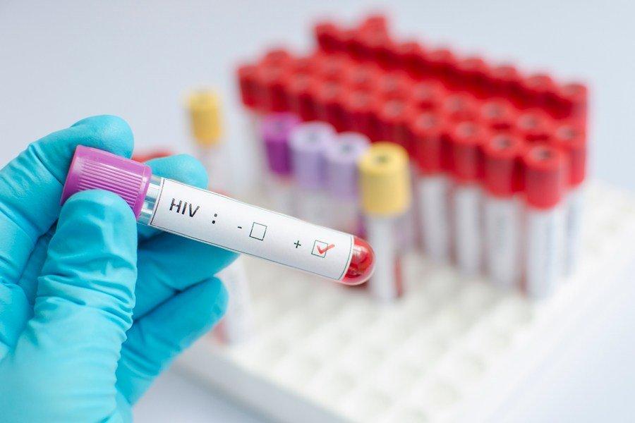 Logran eliminar virus del VIH con transplantes de células madre
